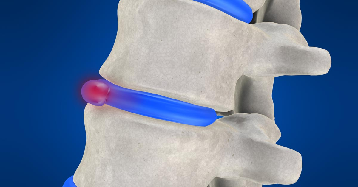 Pinole non-surgical disc herniation treatment